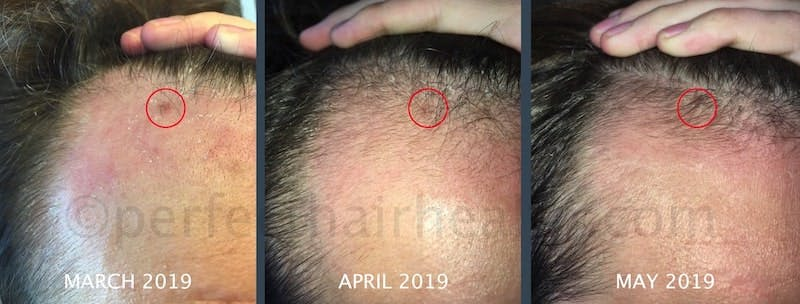 Hair regrowth without finasteride